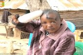 Kenyan infertile man cuts wife's hands for not being pregnant