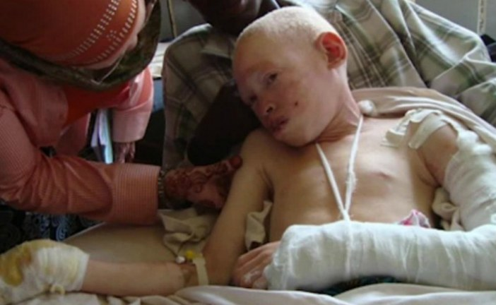 People with albinism in Malawi still 'living in fear'