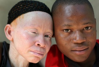 Being black in a white skin: students with albinism battle prejudice