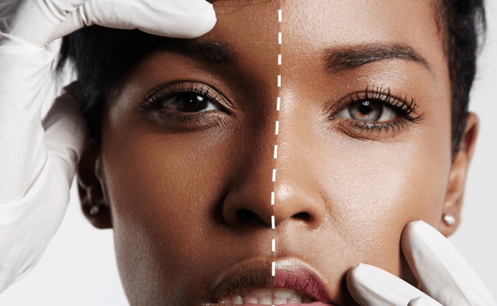 Why it's time all African countries took a stand on skin lightening creams
