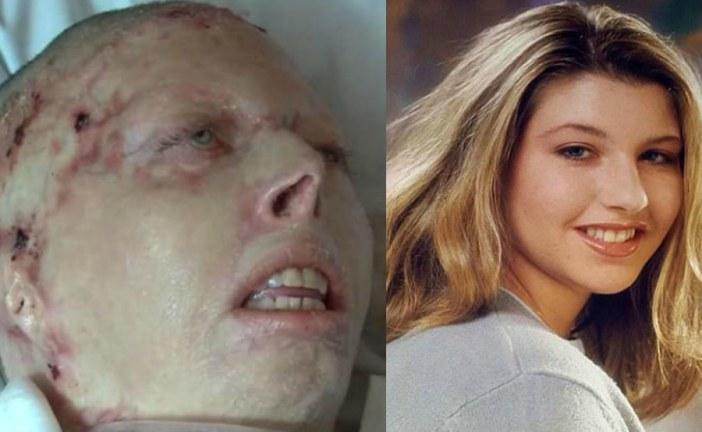 Woman burnt alive by her evil boyfriend dies in the US