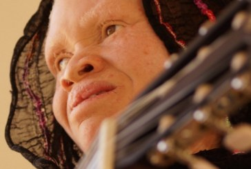 African voices raised in support of people with albinism