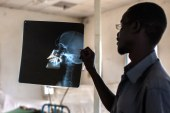 Africa needs to start creating its own medical technology. Here's how